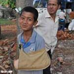 Junge mit gebrochenem Arm wurde versorgt